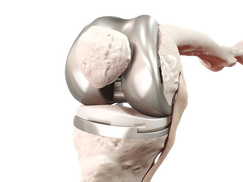 Attune Oberflächenersatzprothese, künstliches Kniegelenk