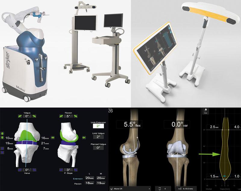 Mako und Navigation zur Optimierung von künstlichen Kniegelenken