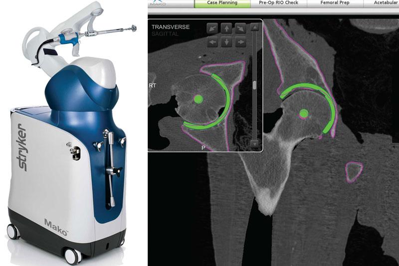 Makoplasty Implantation Hüft TEP und Planung
